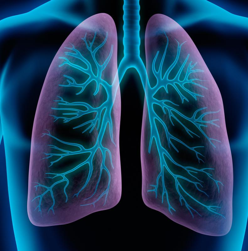 In a double lung transplant, both damaged lungs are removed and replaced with healthy lungs.