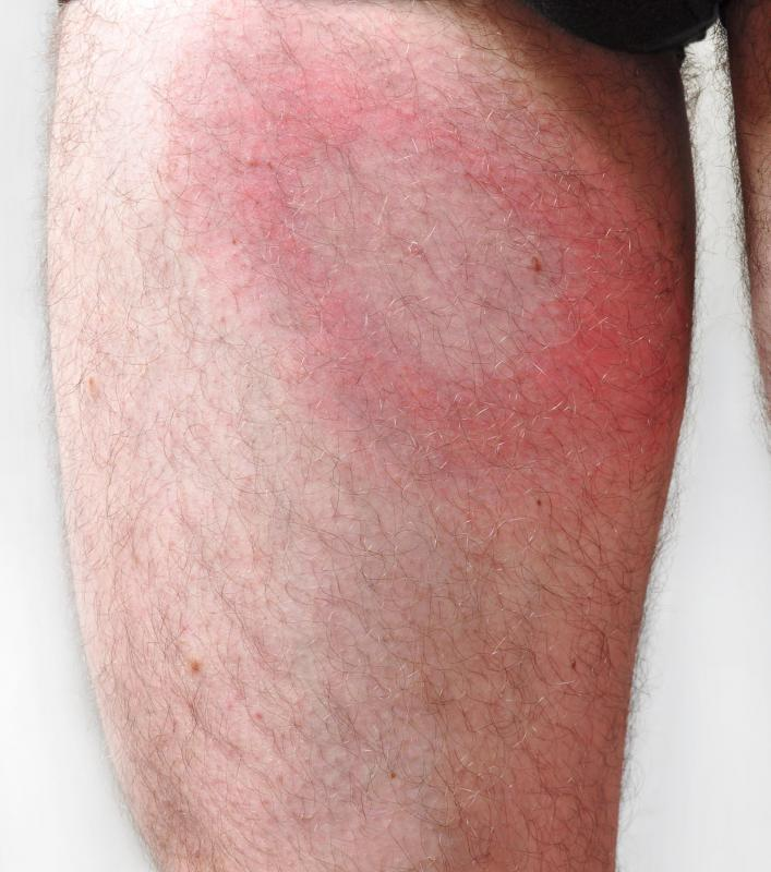 Lyme disease will be evident if a target-like rash appears around a tick bite wound.