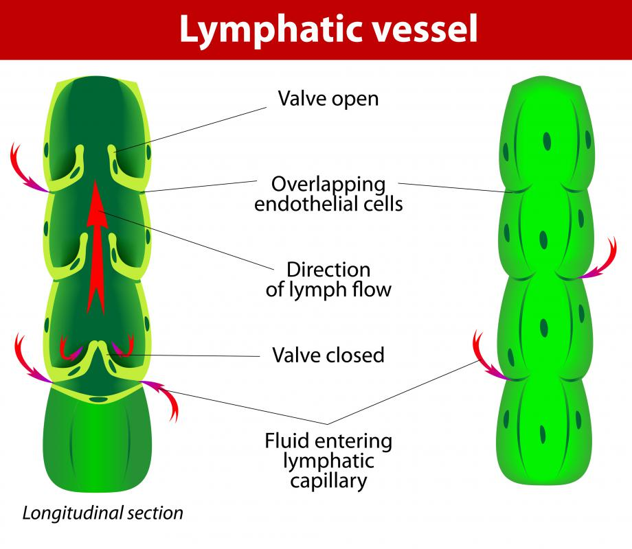 Tumors can develop in the lymphatic vessels.