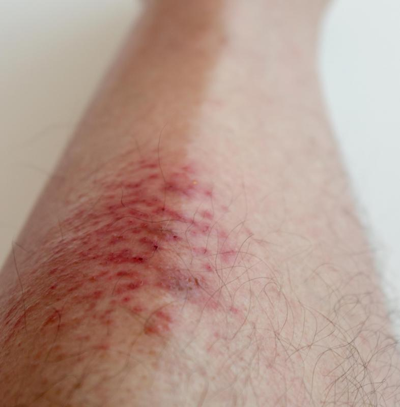 Bacterial infections sometimes cause leg rashes.