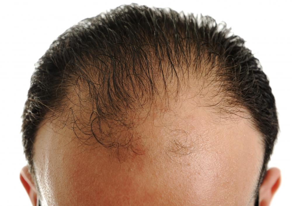 A man starting to lose his hair in the front.