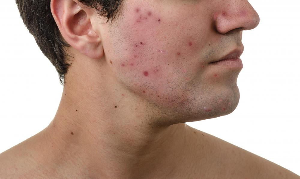 Ayurvedic treatments include eating fruits, vegetables and grains to help prevent the development of acne.
