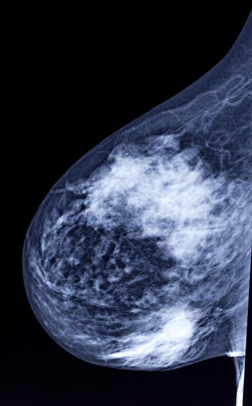 Film-screen mammogram machines record the images onto traditional film.