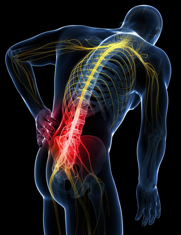 Pain and numbness that accompanies sciatica originates in the lumbo sacral region.