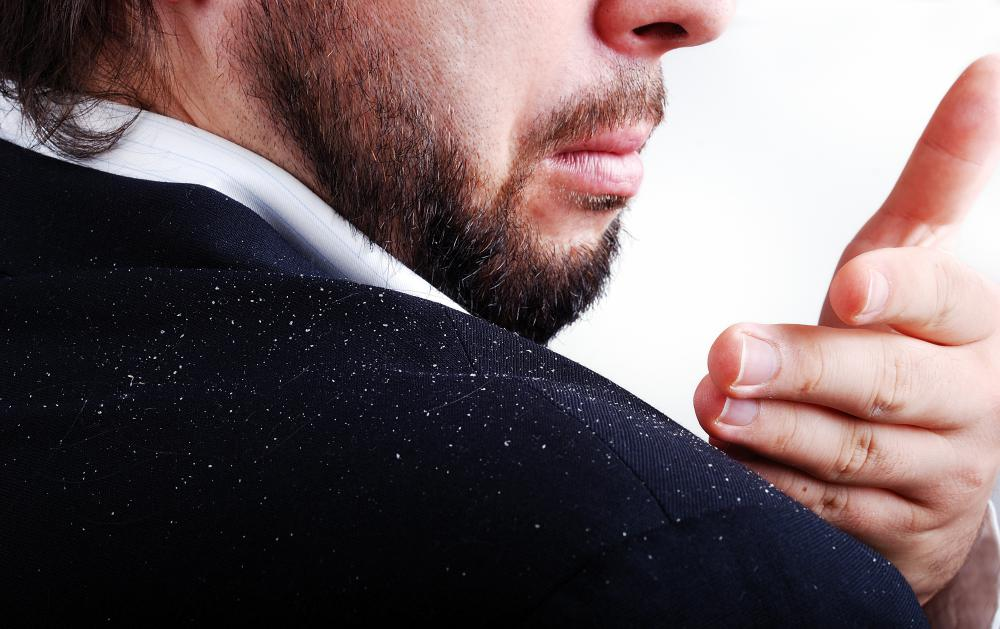 Dandruff may be caused by a sensitivity to a a fungus.