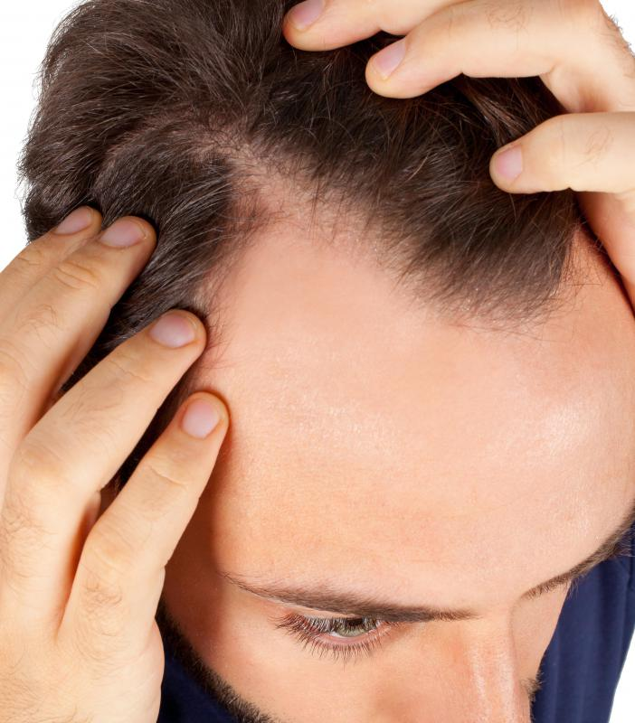 What are some causes of burning scalp with hair loss?