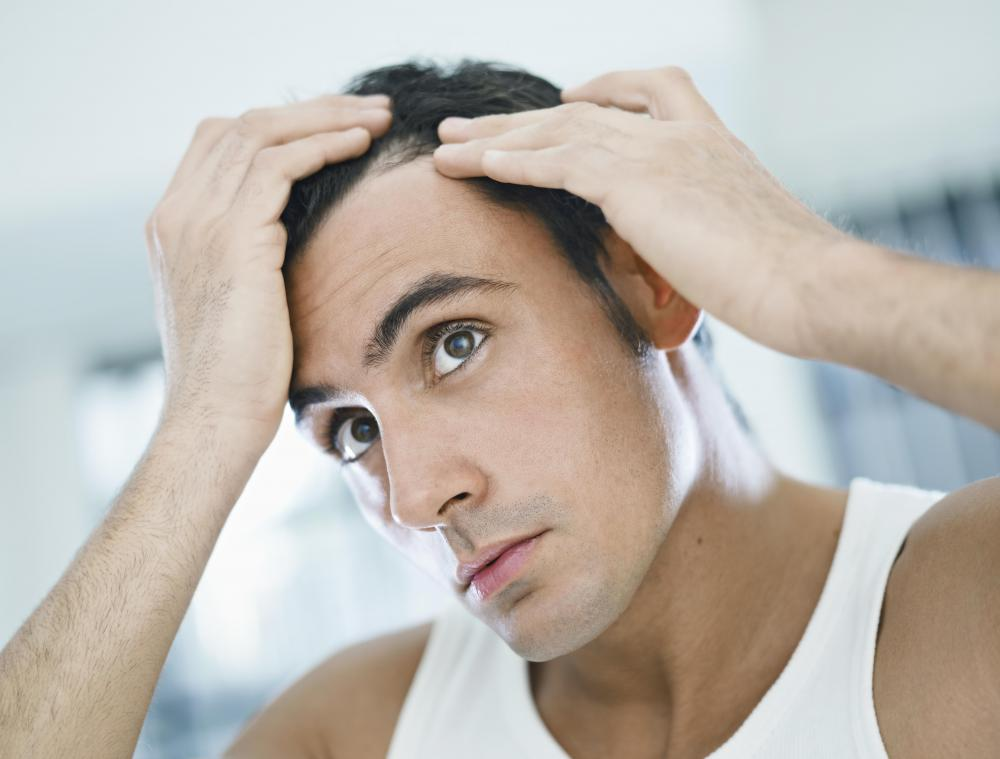 Seborrheic dermatitis often affects the scalp.