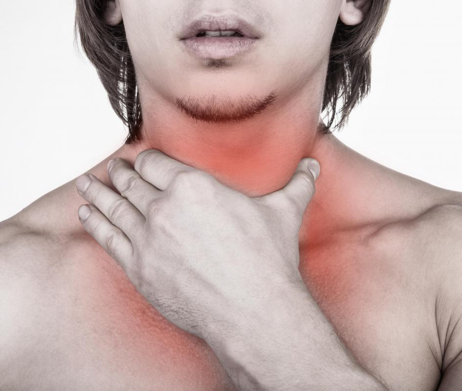 A severe sore throat may be a sign of strep throat.