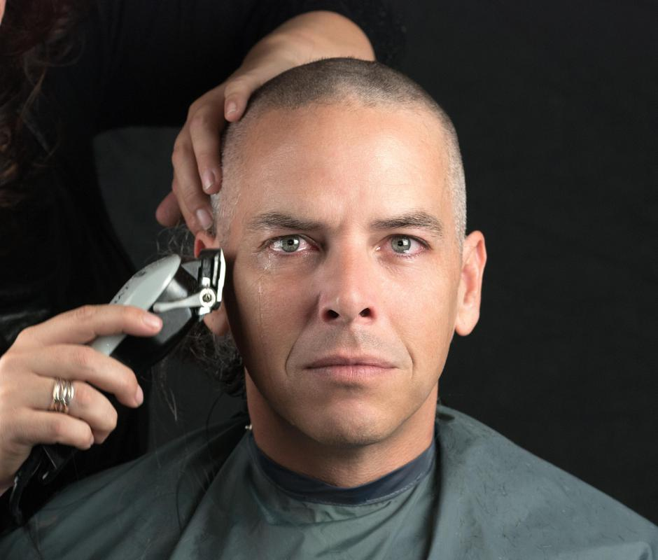 A buzz cut is an option for some men with thinning hair.