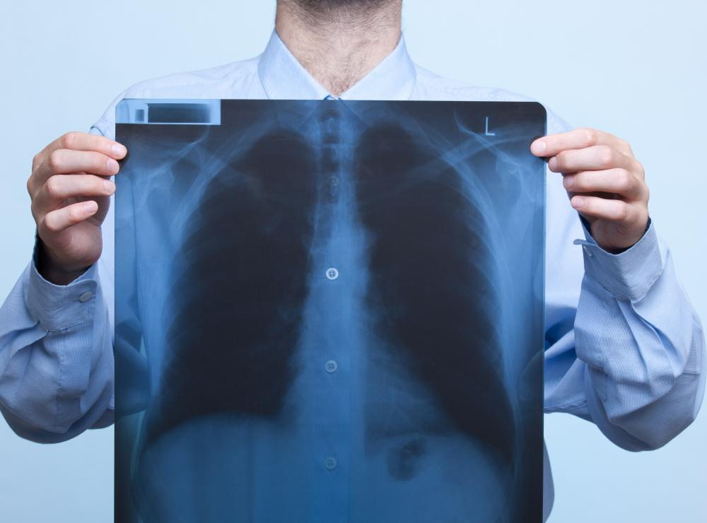 A chest x-ray may be conducted to diagnose mycoplasma pneumonia.