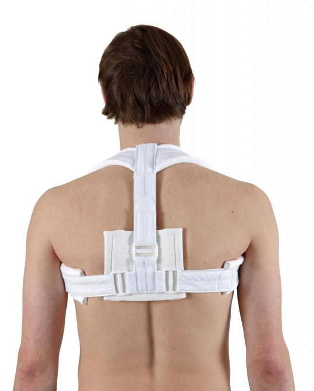 Back braces may be recommended to help healing from a bruised back.