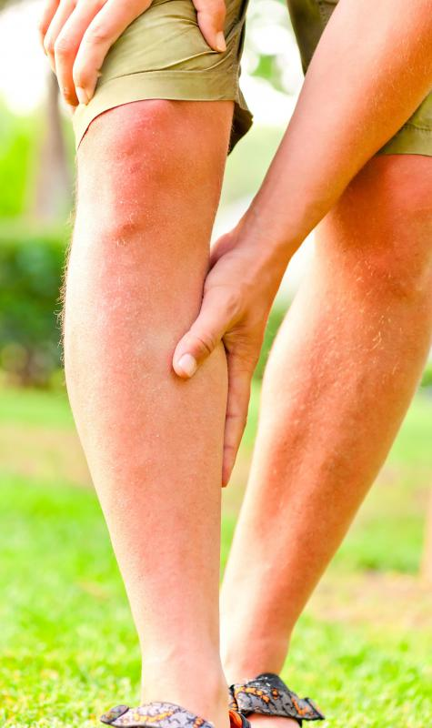 Arginine ethyl ester may help treat leg pain due to obstructed arteries.