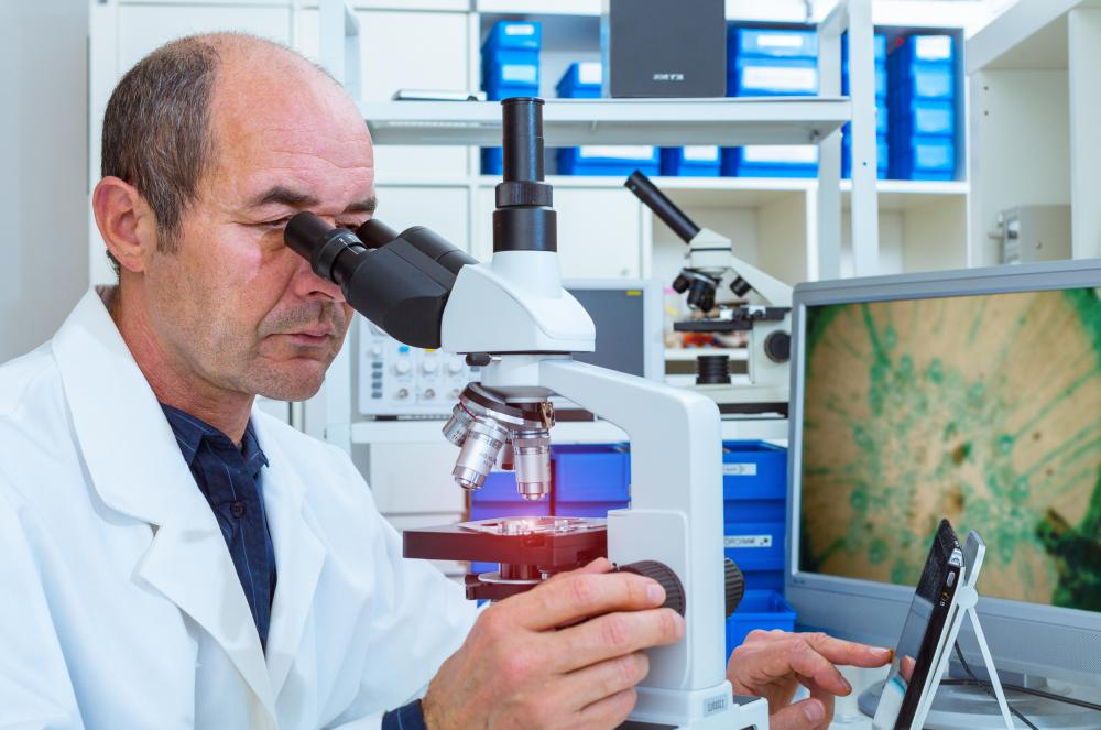 A lung nodule may be sampled and the tissue examined under a microscope if cancer is suspected.