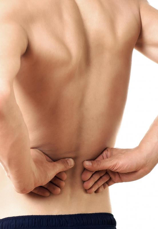 A strained back is most often due to an injury.
