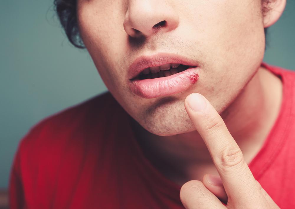 Cold sores usually only show up near the mouth.