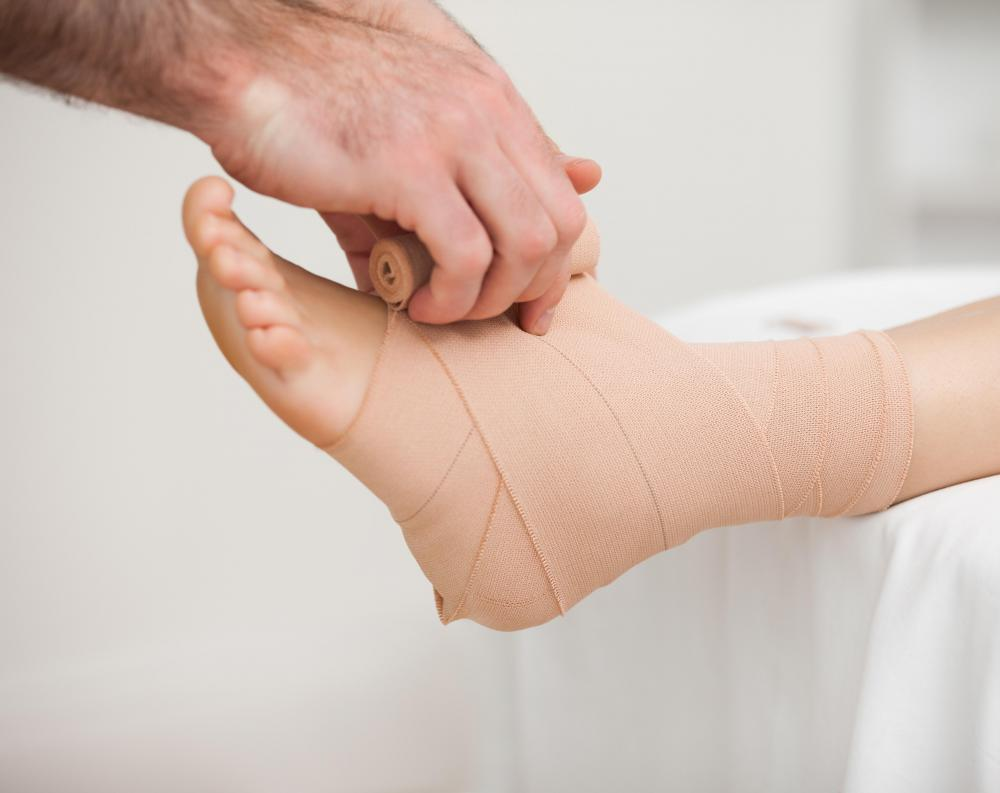 A sprained calcaneofibular ligament should be bandaged firmly.