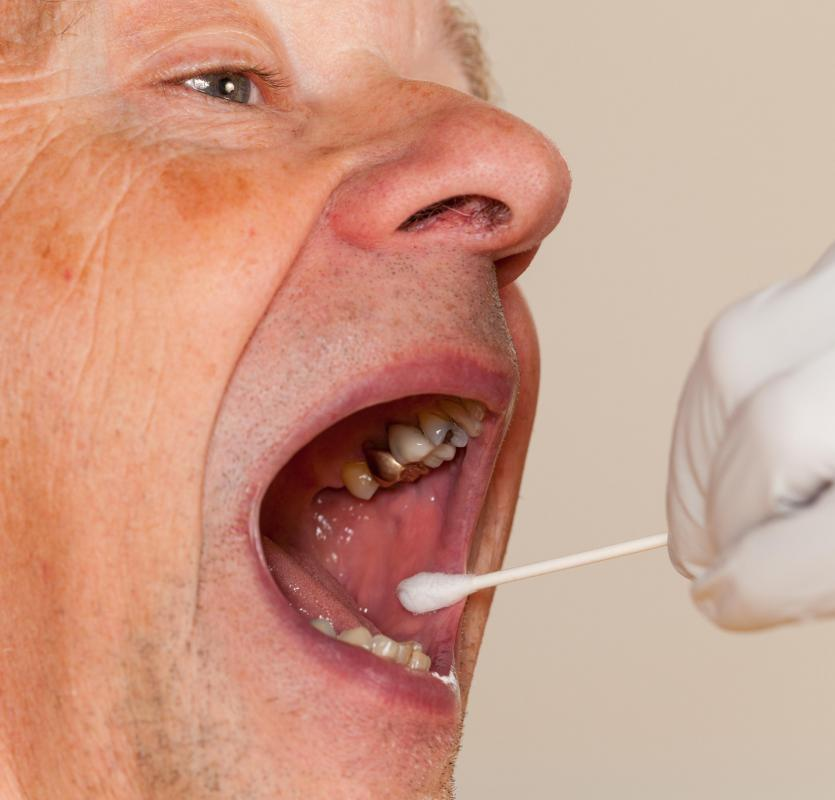 A cotton-tipped swab is used to perform a throat swab.