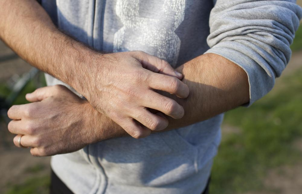 Itching could be caused by a variety of factors, such as an allergic reaction or bug bite.