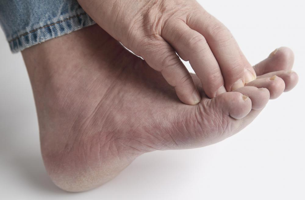 What are Varicose Veins  Varicose Veins In Feet