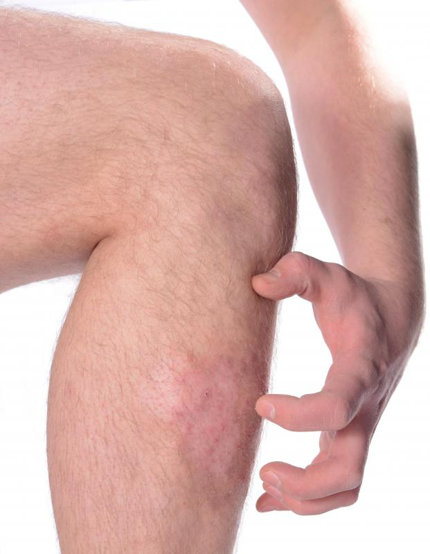 Symptoms of scabies include skin rash and itching.