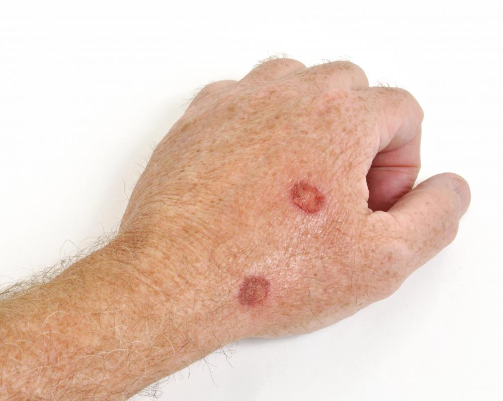 man with lesions turning into yellow scabs on his hand