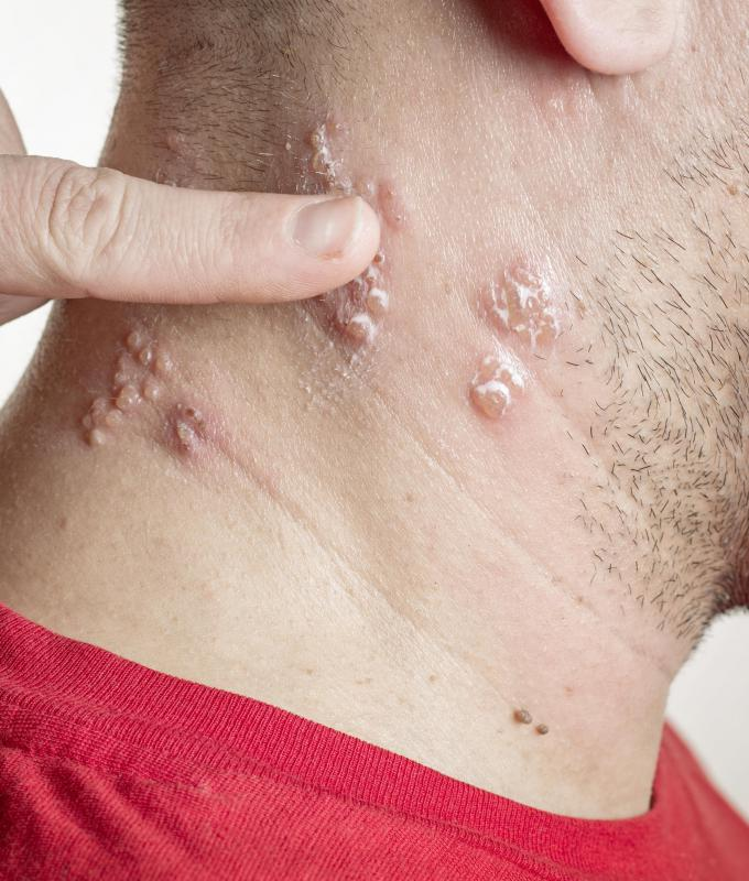 Get the facts about how you catch facial Herpes and what ...