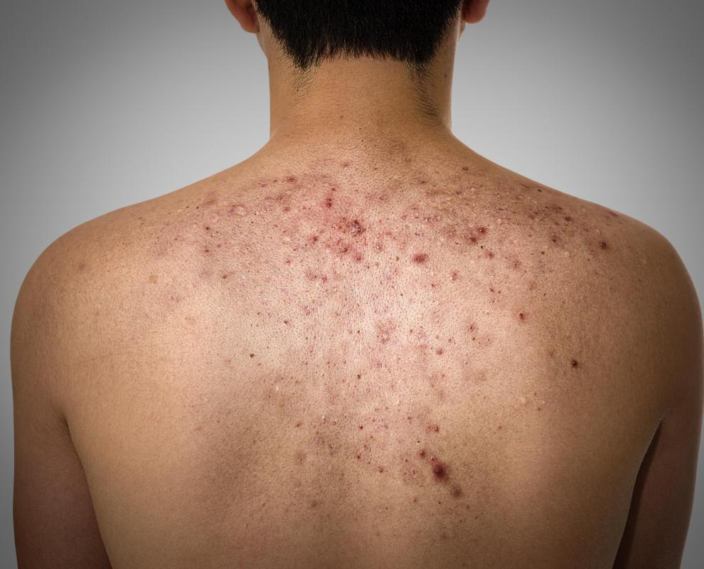 The back is a prime place for acne breakouts because of its tendency to secrete a large amount of oil.