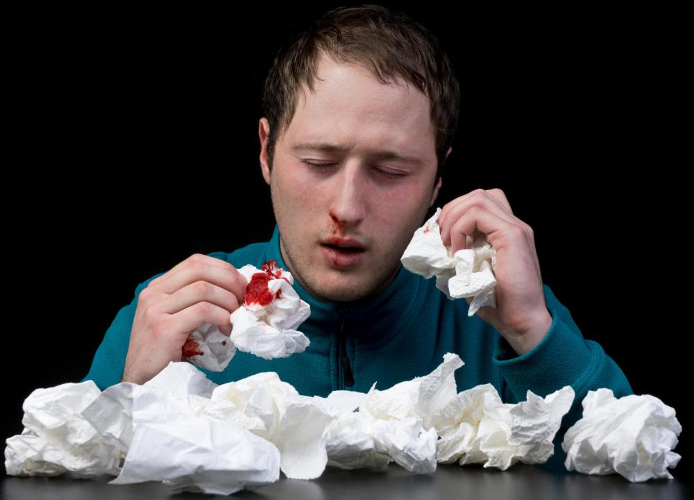 Nosebleeds are a possible side effect of ibuprofen.