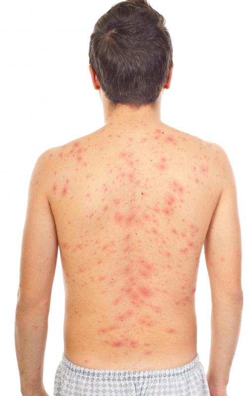 Lupus rash can sometimes look similar to the rash caused by chicken pox.