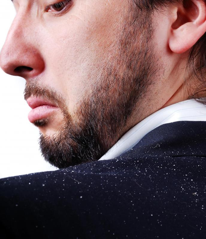 Signs of dandruff include an itchy scalp and white flakes that fall from the head.