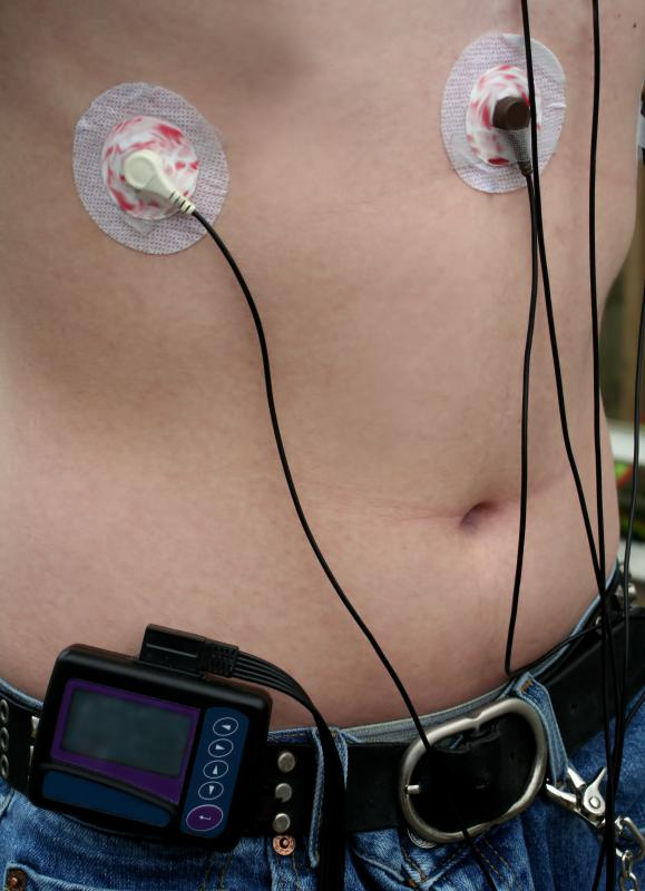 During cardiac monitoring, a patient is fitted with a telemetry transmitter that sends data to the area of the hospital where the monitoring occurs.