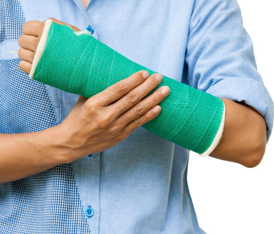 A broken wrist may need to be put into a cast.