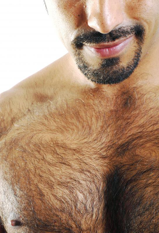 Electrolysis is used to permanently remove hair in areas like a man's chest.