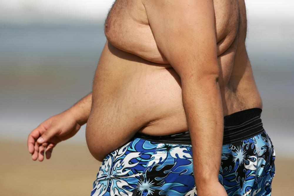 Overweight people sometimes chaff along the skin folds.