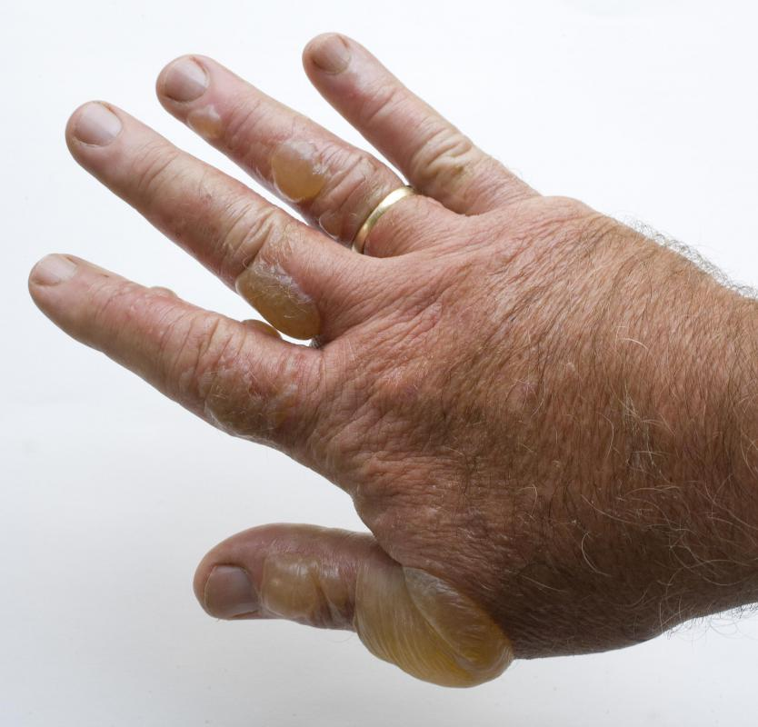 A man with poison ivy blisters on his hand.