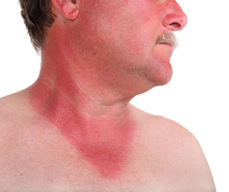 A sunburned man.
