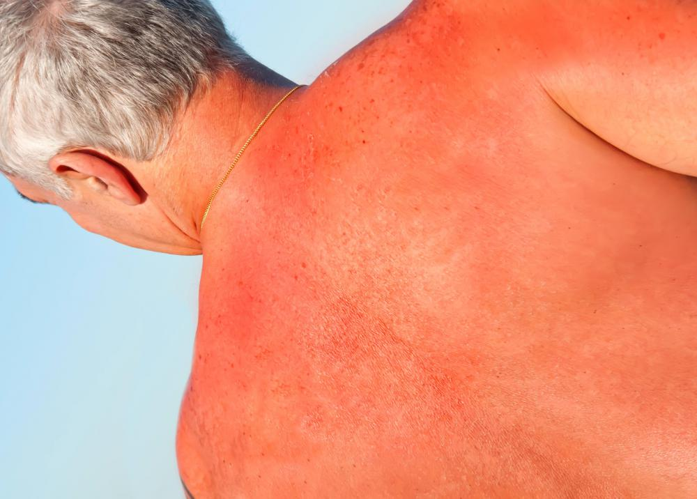 The rash from a sunscreen allergy may be similar to a sunburn.