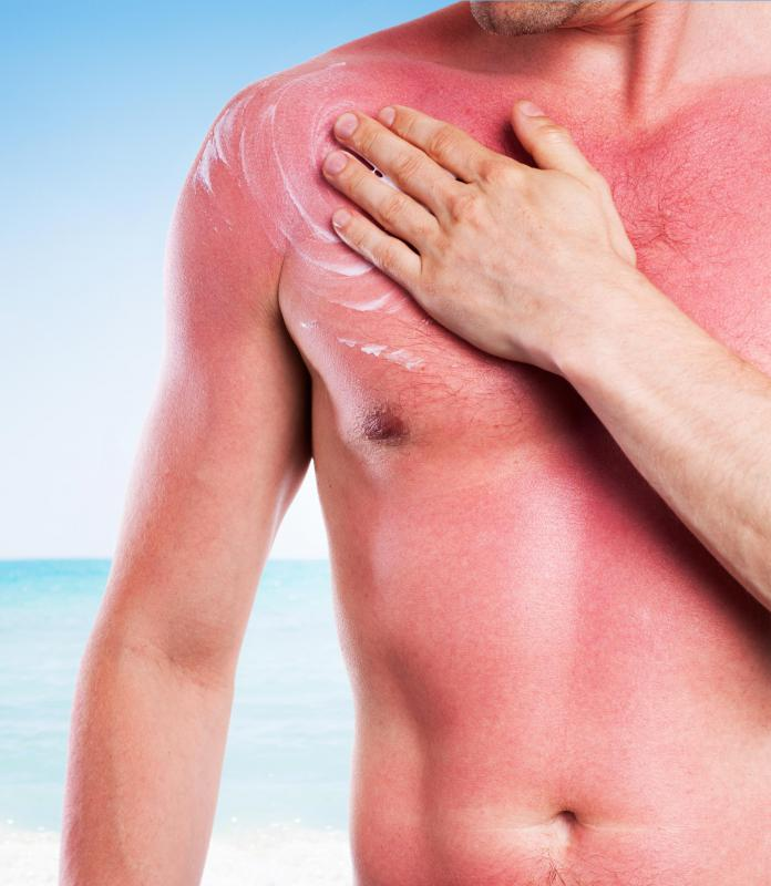 Weak topical anesthetics can be used to treat sunburns.