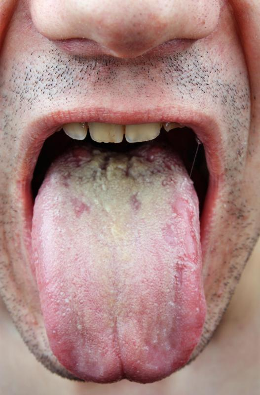 A yeast infection can occur in the mouth.