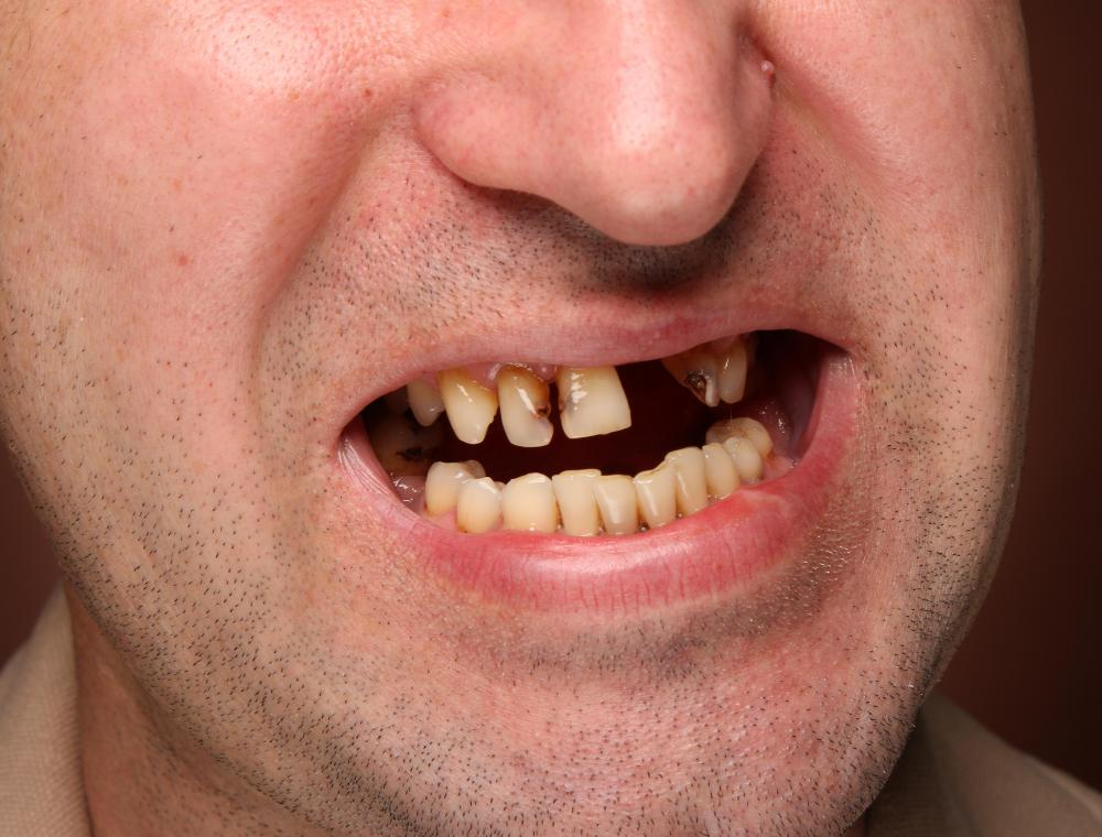 A patient with a single missing tooth may receive a bridge abutment.