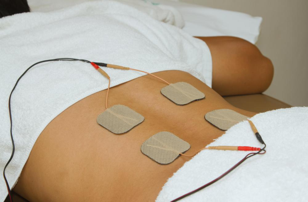 Transcutaneous electrical stimulation is sometimes used to ease the pain of nerve injuries within and around the superficial inguinal ring.
