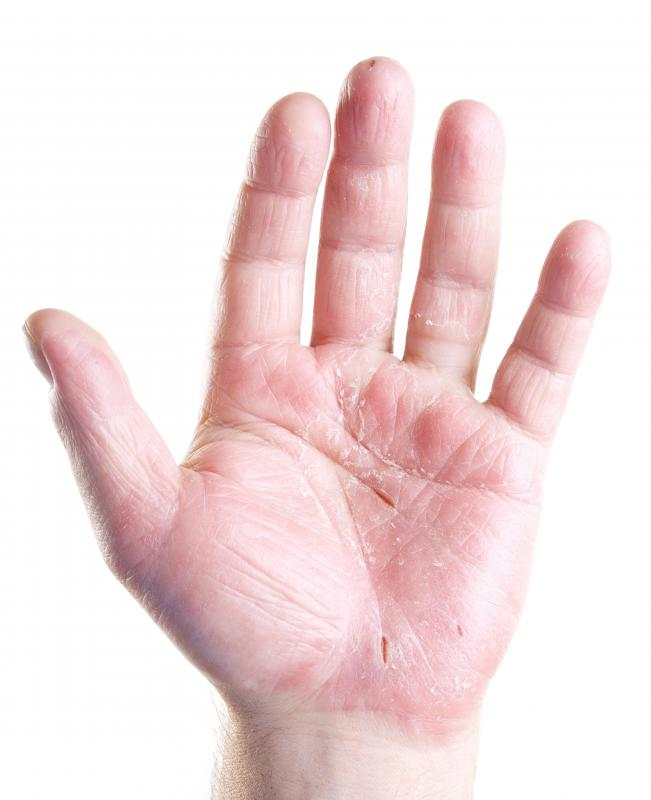 Moisturizing hand lotion may be used to repair dry, cracked hands.