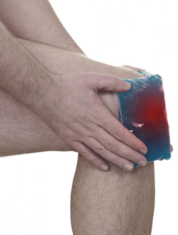 A cold compress may help alleviate pain associated with suprapatellar bursitis.
