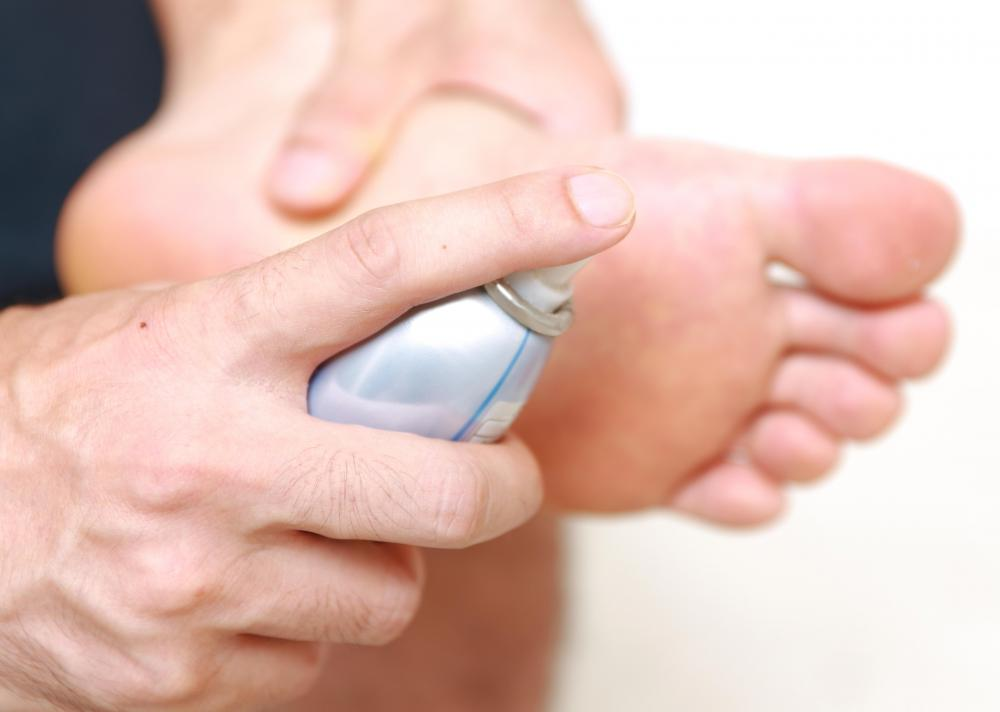 Medicated foot spray may be used to treat toe jam.