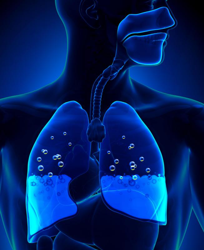 A significant amount of chlorine exposure can cause the accumulation of fluid in the lungs.