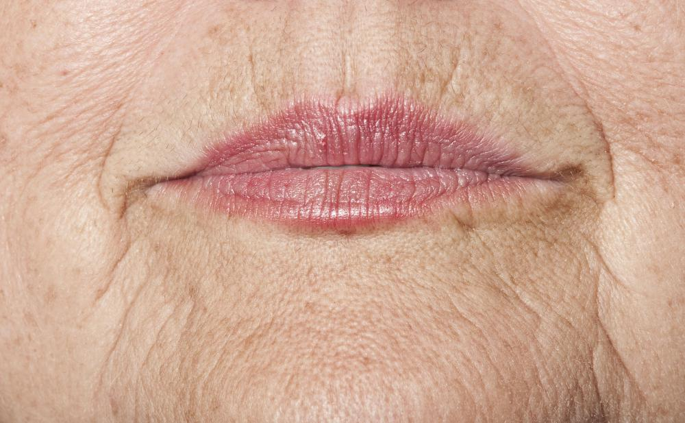 Botox is used to help minimize the appearance of wrinkles.