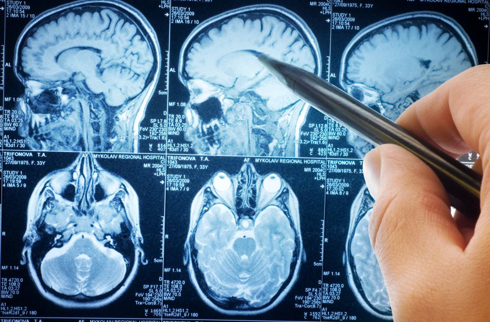A benign brain tumor can still cause problems.