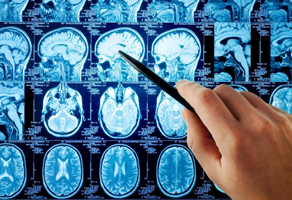 Neurologists study and diagnose diseases like Alzheimer's and injuries to the brain caused by trauma or stroke.
