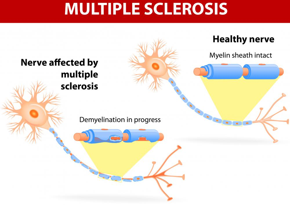 Myelin nerve sheaths are degraded in cases of multiple sclerosis.