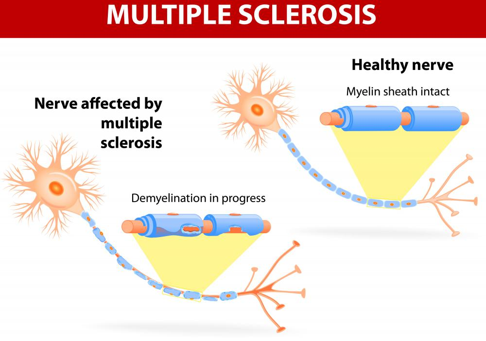 Multiple sclerosis facial swelling